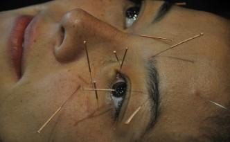 agopuntura occhi