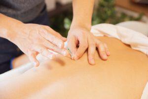 therapist treating patient with needles during procedure of alternative medicine